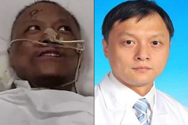 Coronavirus has darkened the skin, damaged the liver of Wuhan doctors who got infected