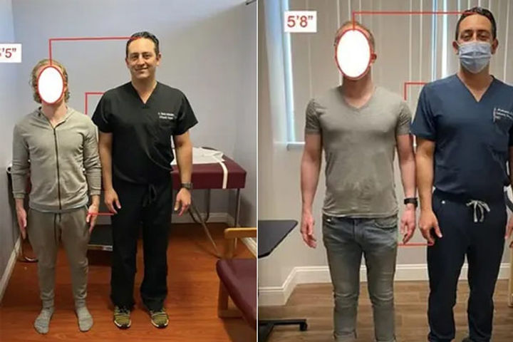 Doctor claims he can make people taller