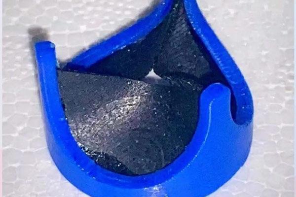 Chennai Surgeon Creates 3D Printed Special Biopolymer Heart Valve Prototype