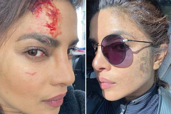 priyanka chopra injured on the sets of citadel shares pics